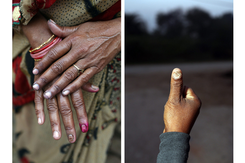 Villagers suffer from nail abnormalities believed to have been caused by prolonged exposure to highly acidic and toxic waste water which is discharged onto their farmland.