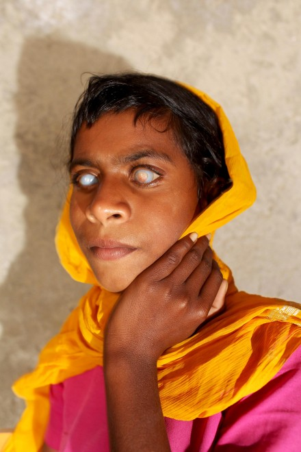 Shimla Bai, 11, sits in her classroom in the village of Teejaruhela on the India-Pakistan border. Shimla has been blind since birth and is one of many children in the village who suffer from development health issues.